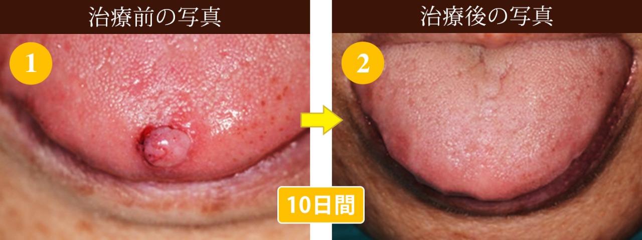 舌の腫瘍切除 難治療 写真