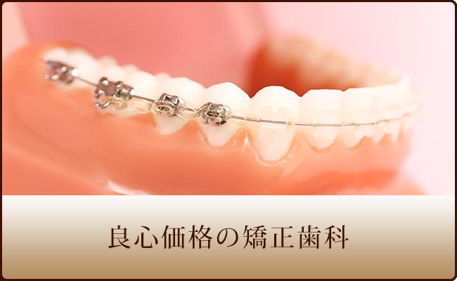 良心価格の矯正歯科
