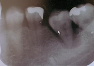 歯牙移植術レントゲン2週間後