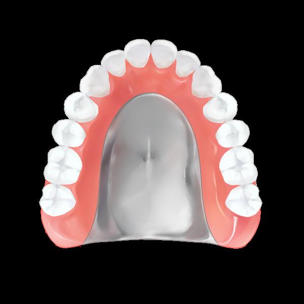 金属床義歯(入れ歯)