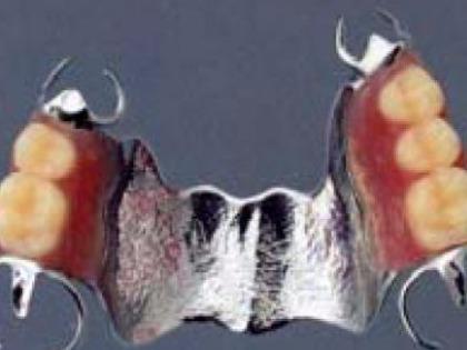 コバルトクロムの部分義歯