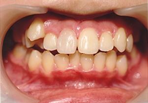 歯牙再植写真暫間固定後一ヶ月後