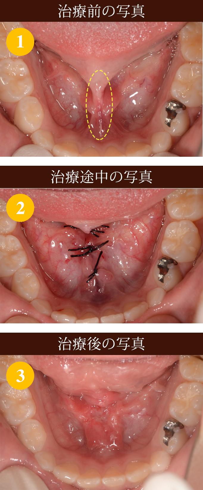 舌小帯短縮症 治療 ①写真