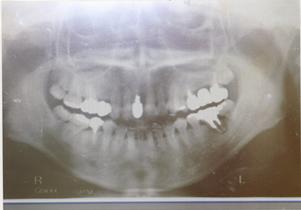 歯牙移植術レントゲン