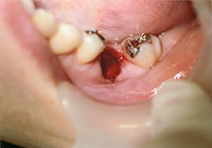 歯牙移植術写真
