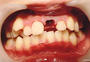 歯牙再植写真