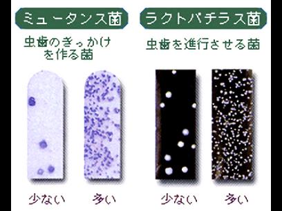 むし歯のきっかけを作る菌「ミュータンス菌」、むし歯を進行させる菌「ラクトバチラス菌」