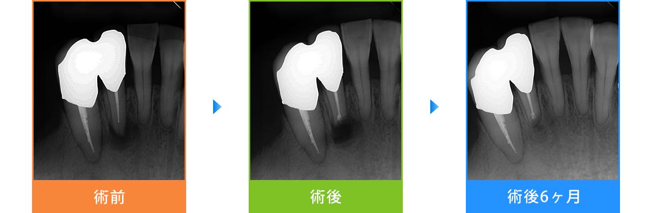 歯根端切除術の症例