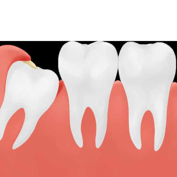 親知らずが歯ぐきの中に埋没している場合