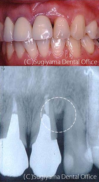 歯周病治療症例2 術後