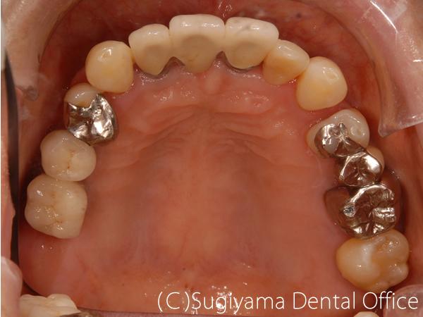 歯周病治療症例3 術後