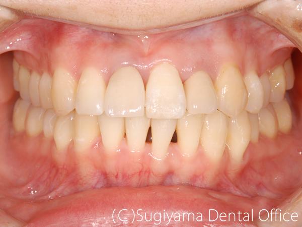 矯正歯科症例6 術後