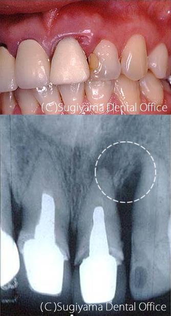 歯周病治療症例2 術前