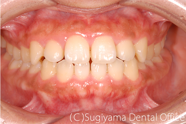 歯周病治療症例1 術後