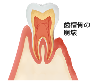 歯槽骨の崩壊