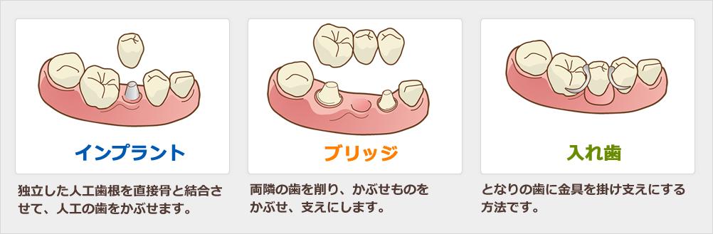 インプラント、ブリッジ、入れ歯