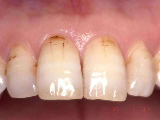 噛み合わせ不調整により歯にヒビが入った状態