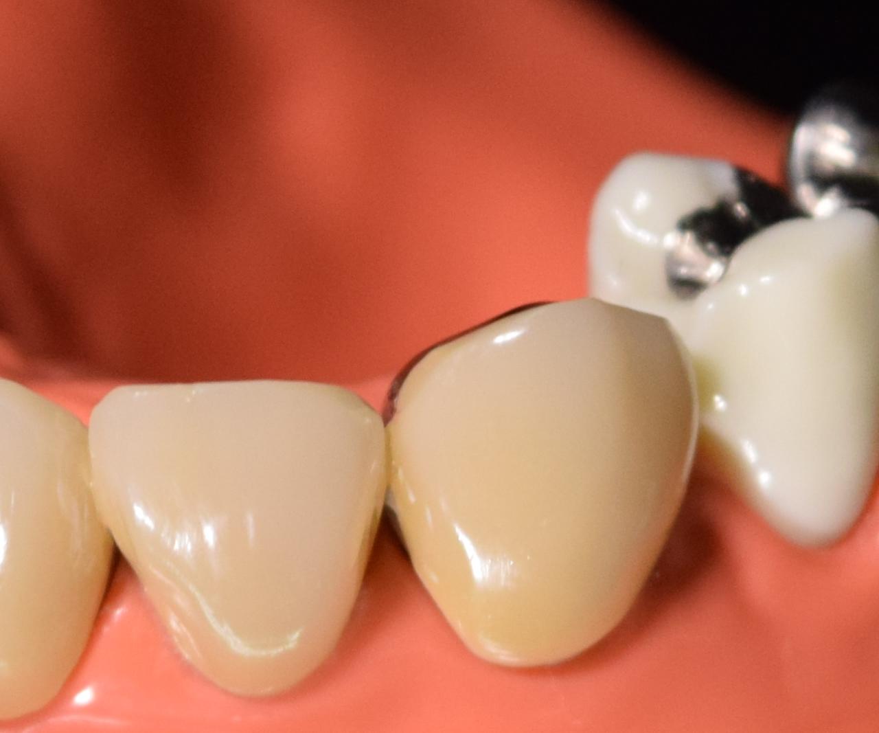歯の治療に使用する材料について