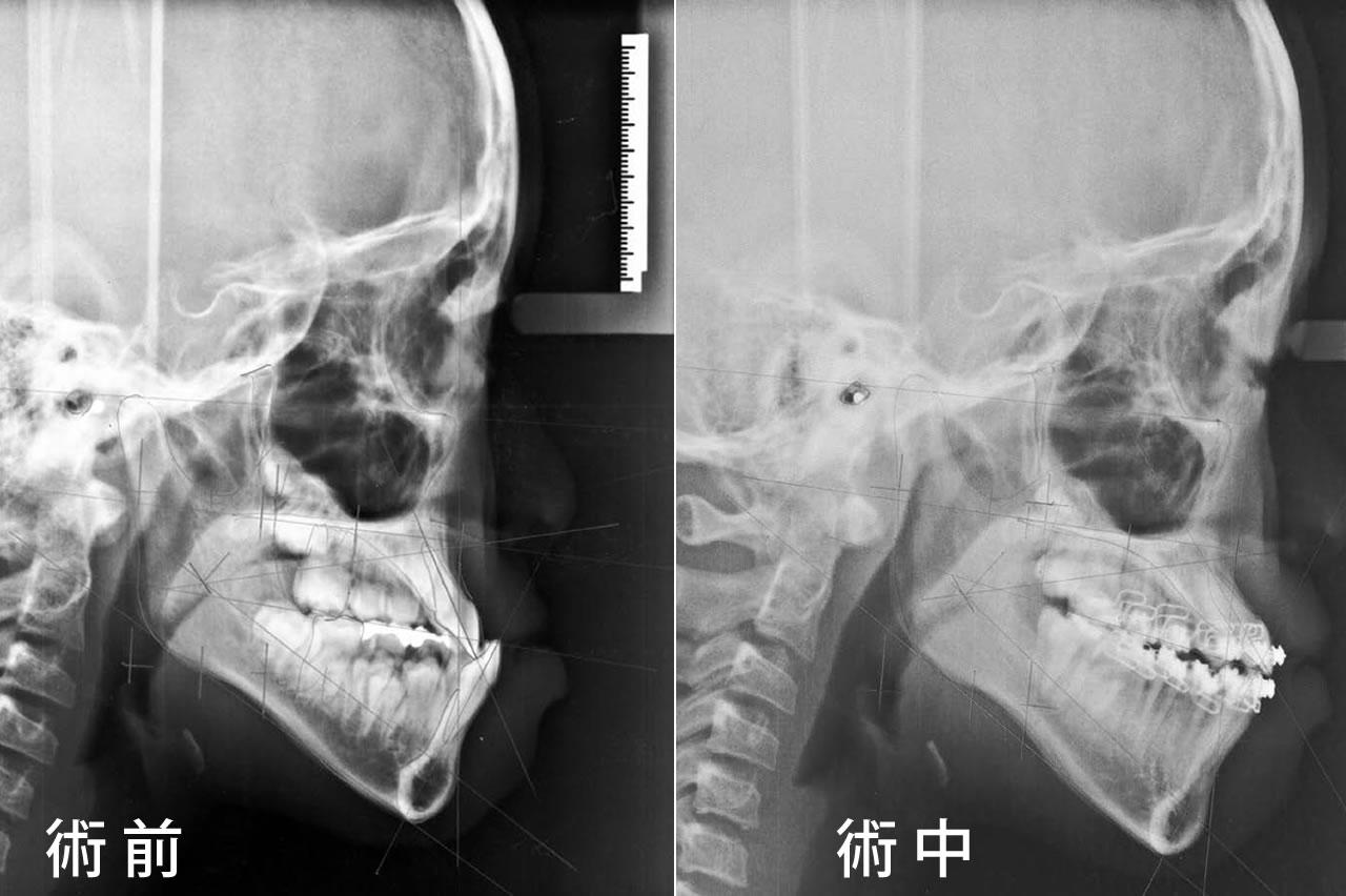小児矯正の症例 CASE3 反対咬合セファロ 術中(現在治療中)