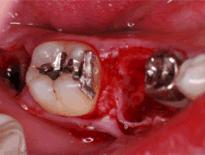 歯牙移植治療症例 STEP2