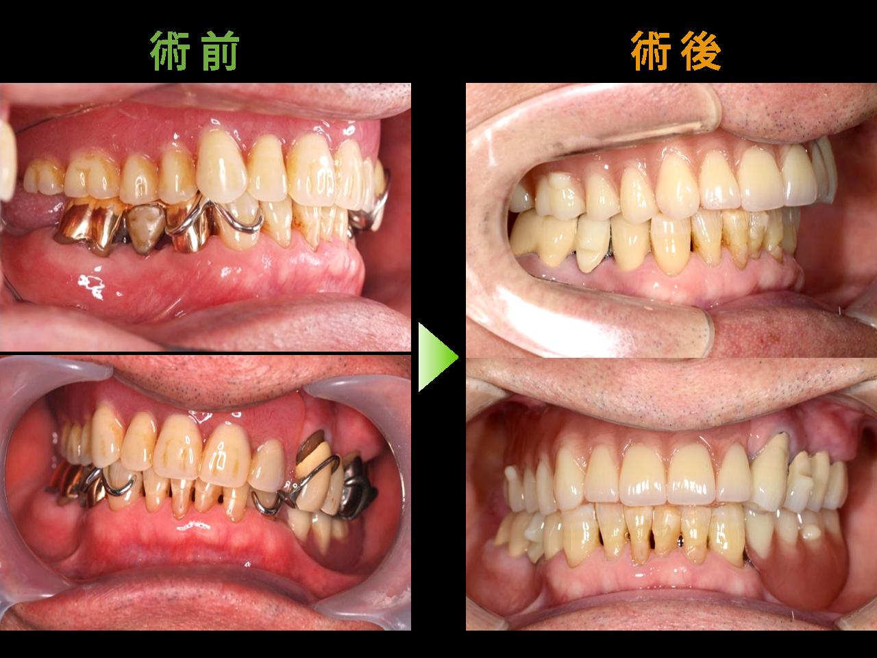 BPS -生体機能補綴システム-による義歯症例02