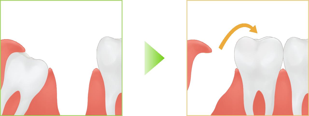 歯の移植イメージ