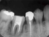 歯牙移植治療症例 STEP6