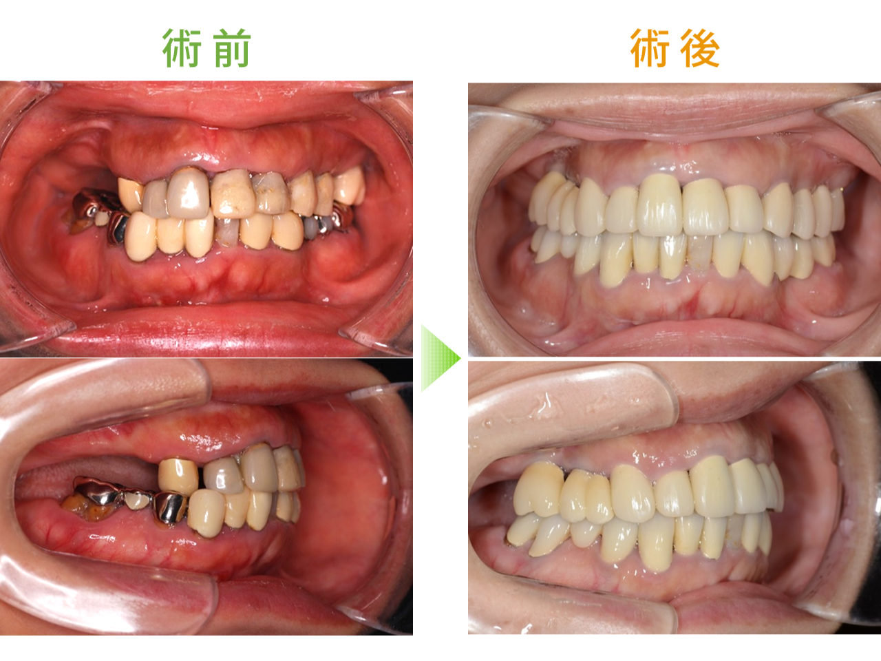 BPS -生体機能補綴システム-による義歯症例01