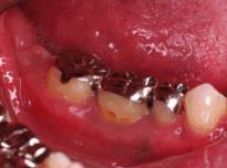 歯牙移植治療症例 術後