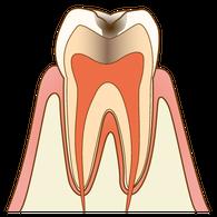 むし歯(C2)の歯の断面図