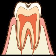 むし歯(C1)の歯の断面図