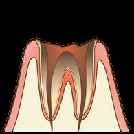 むし歯(C4)の歯の断面図