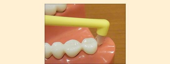 歯並びが凸凹している所の磨き方