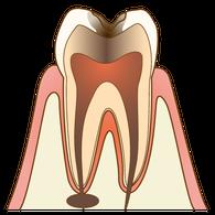むし歯(C3)の歯の断面図