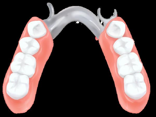 部分入れ歯 (部分義歯)