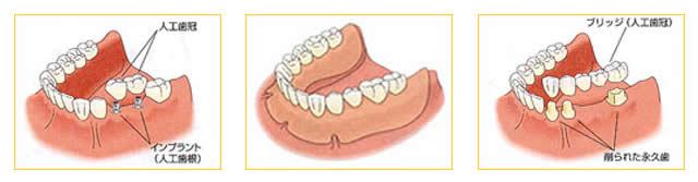 インプラント・入れ歯・ブリッジの比較