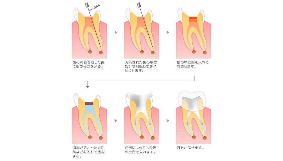 重度の虫歯治療~根管治療~