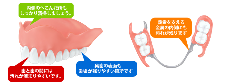 入れ歯の清掃について