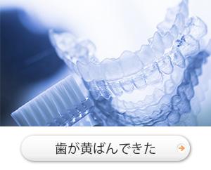 歯が黄ばんできた