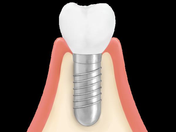 人工歯の装着