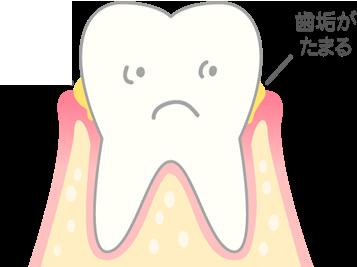 進行度1歯ぐきがはれ、出血する