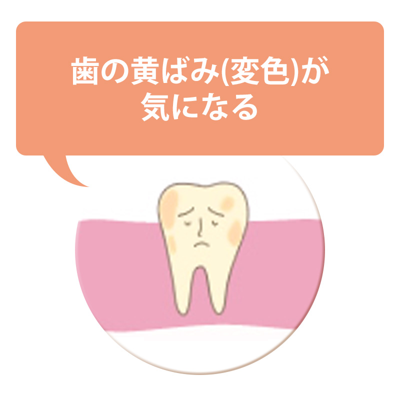 歯の黄ばみ(変色)が気になる