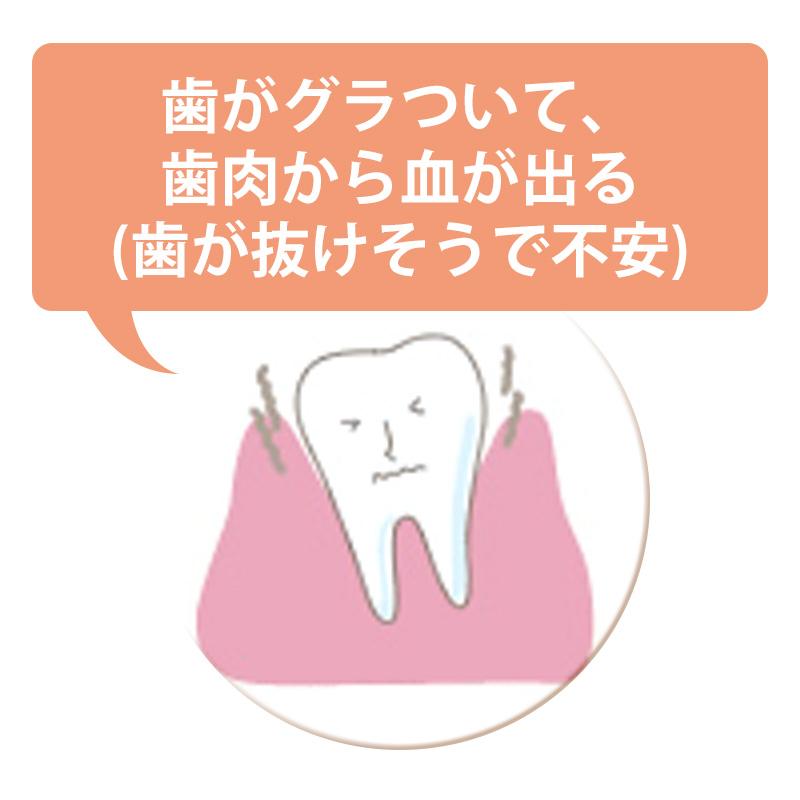 歯がグラついて、歯肉から血が出る(歯が抜けそうで不安)