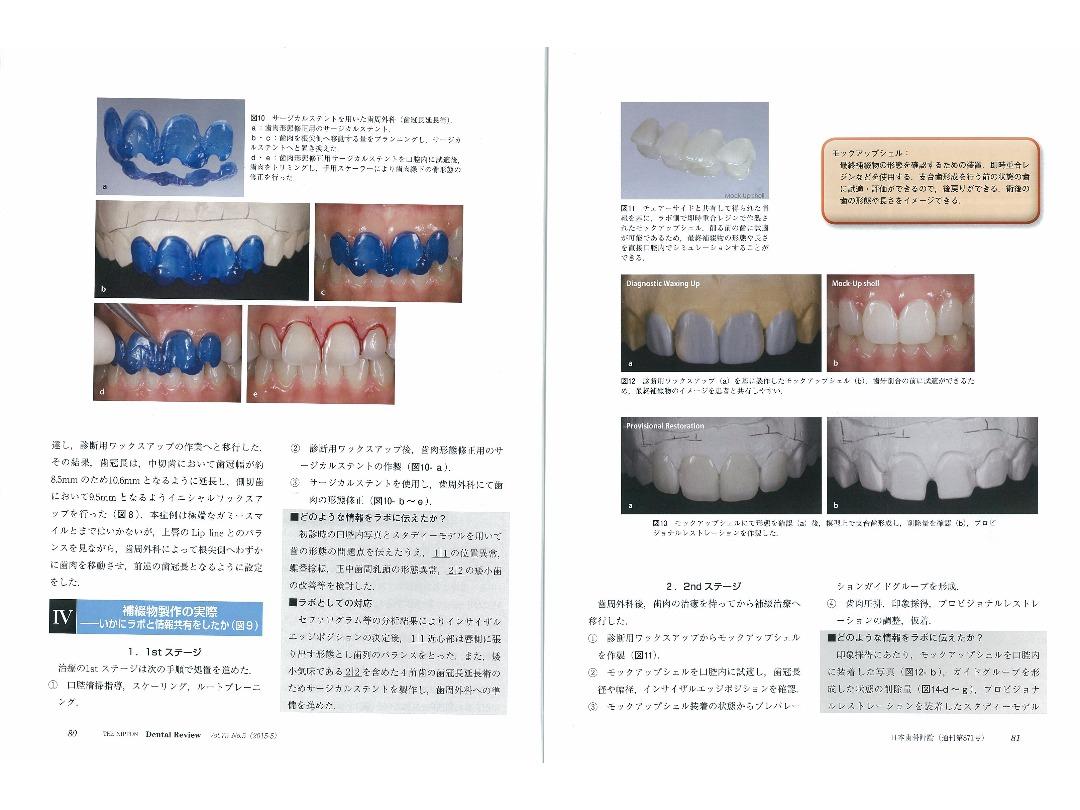 『日本歯科評論(THE NIPPON Dental Review)』2015年5月号/別刷/ページ6・7