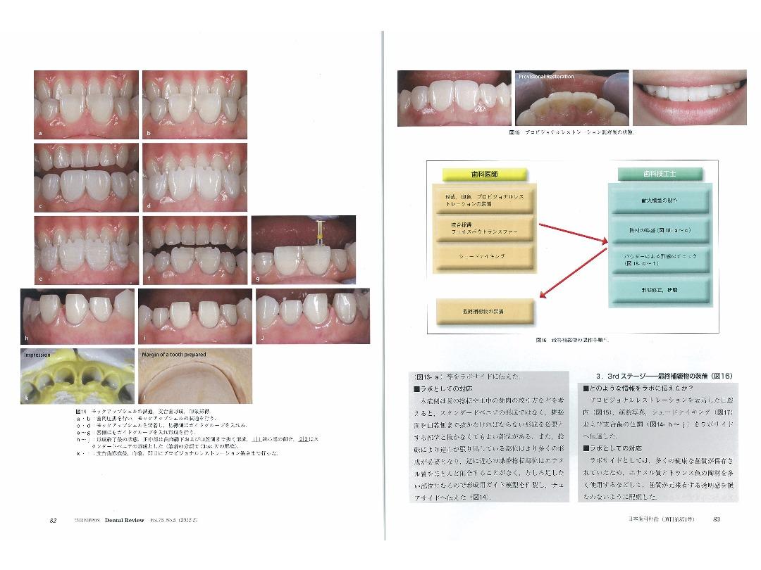 『日本歯科評論(THE NIPPON Dental Review)』2015年5月号/別刷/ページ8・9