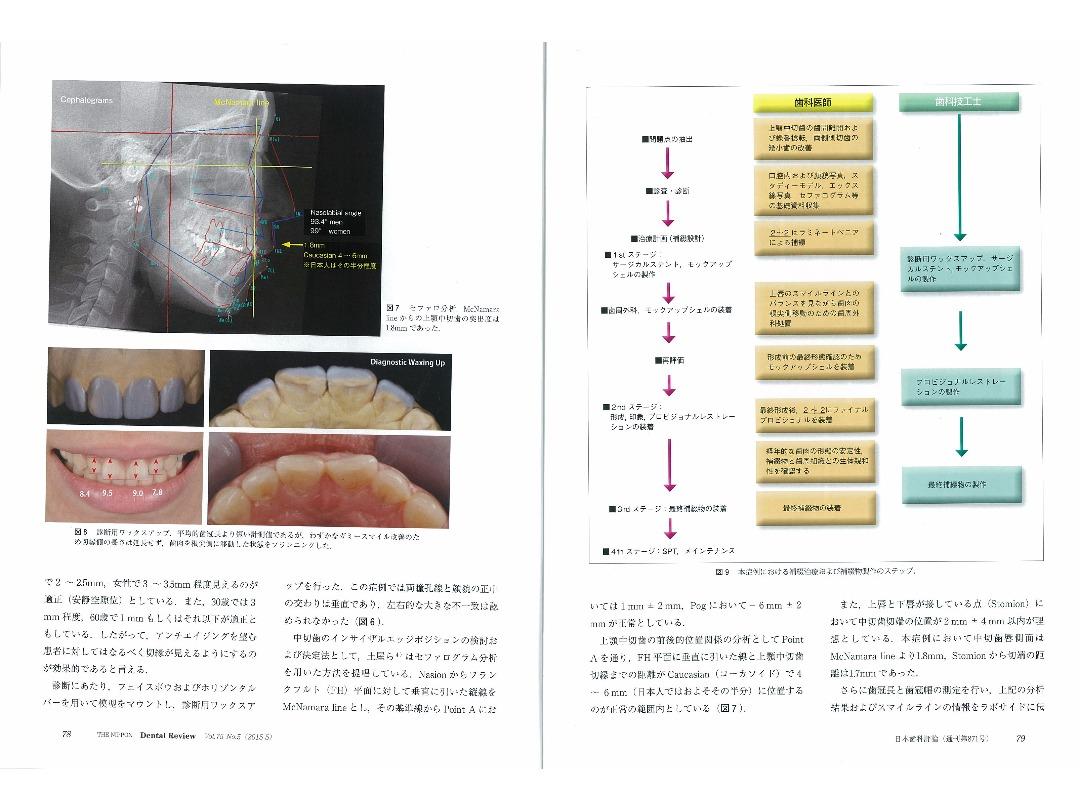 『日本歯科評論(THE NIPPON Dental Review)』2015年5月号/別刷/ページ4・5