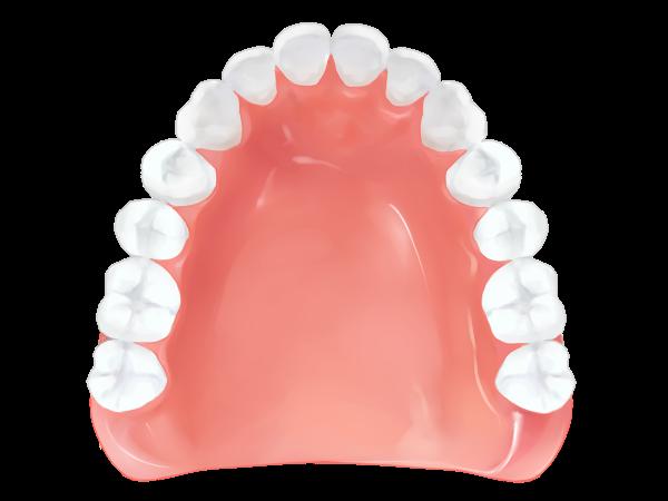 レジン床義歯 - 保険適応 -