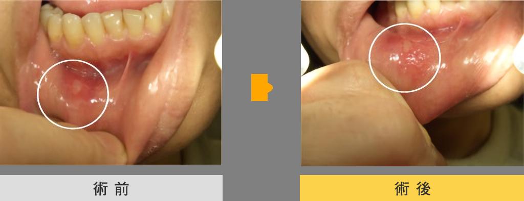口内炎の治療 症例