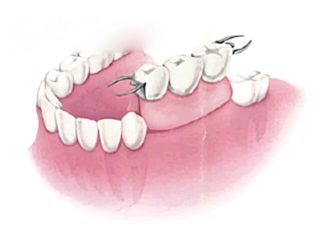 取り外し式の部分入れ歯(パーシャルデンチャー)
