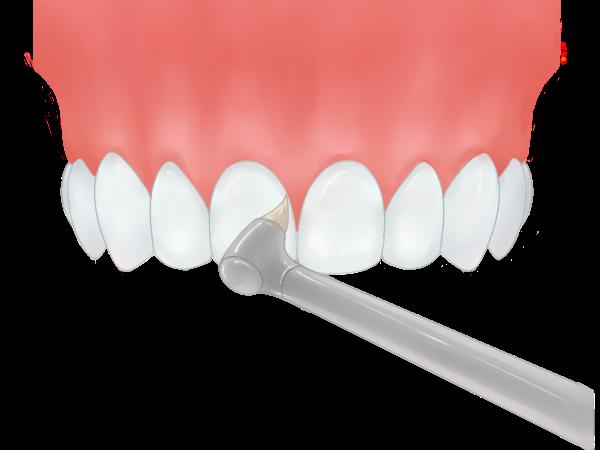 ① チェックと歯間の清掃